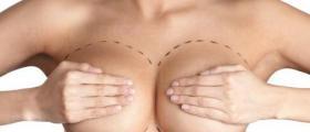 Намаляване на гърди в София