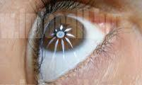 Офталмоскопия в град София-Възраждане