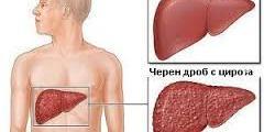 Операции на черния дроб
