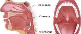 Оперативно лечение на сливици - Професор д-р Спас Консулов