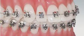 Ортодонтия в Бургас