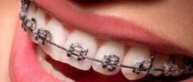 Ортодонтия в Стара Загора
