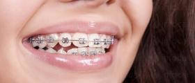 Ортодонтско лечение в Бургас-Център