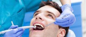 Отстраняване зъбен камък в София-Люлин