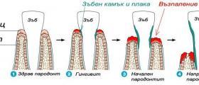 Почистване зъбен камък в Русе