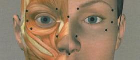 Поставяне Botox