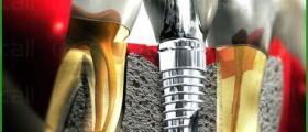 Поставяне на зъбни импланти в София-Гоце Делчев