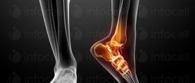 Прегледи при ортопед-травматолог в Плевен