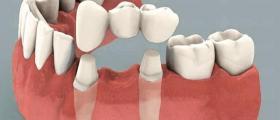 Протетична стоматология във Варна-Приморски