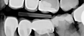 Рентгенова диагностика зъби във Варна