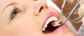 Стоматологичен преглед по здравна каса в Плевен