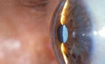 Диагностика и лечение на катаракта във Варна и Търговище - Доктор Даниела Демирева