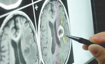 Диагностика и лечение на нервни болести в Бургас - Доктор Живко Гоцев