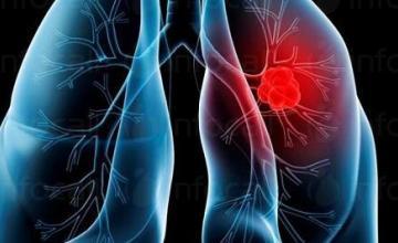 Диагностика на белодробни болести в Смолян