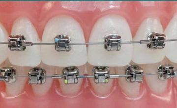 Естетична стоматология в Ямбол