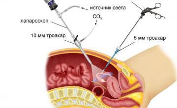 Гинекологични операции в София-Център - Доц доктор Елиза Тюфекчиева