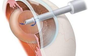 Хирургично и лазер лечение катаракта в София-Център - Офталмолог София-Център