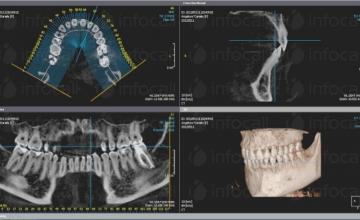 Имплантология в Русе