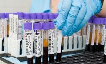 Имунологични изследвания в Благоевград - МДЛ Медилаб