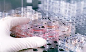 Имунологични изследвания в Гоце Делчев