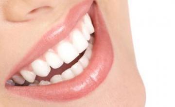 Избелване на зъби в Добрич
