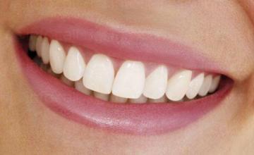 Избелване на зъби в Казанлък