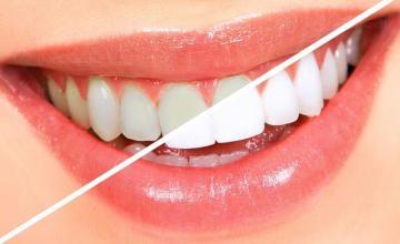 Избелване на зъби в Поморие - Доктор Гергина Милкова