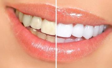 Избелване на зъби в София-Дървеница - Дентални услуги София-Дървеница