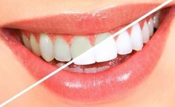 Избелване на зъби в София-Гоце Делчев - Д-р Теодора Джозеф