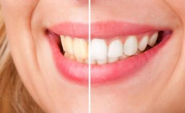 Избелване на зъби в София-Лозенец - Дентален център в София Лозенец