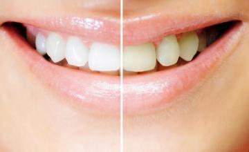Избелване на зъби във Варна - Доцент Христина Арнаутска