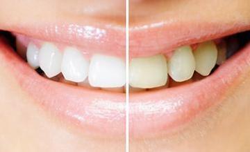 Избелване зъби Благоевград