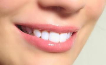 Избелване зъби в София-Център
