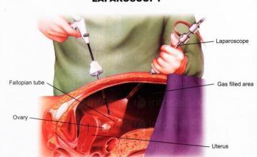 Лапароскопска хирургия в София-Красно село - Доктор Виктор Новачков
