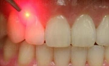 Лазерна стоматология в Кърджали