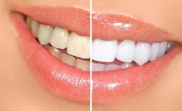 Лазерно избелване на зъби в София-Лагера - Доктор Ирен Влахова