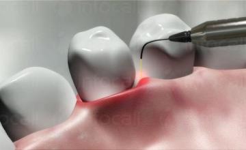 Лазерно лечение на зъби в Русе
