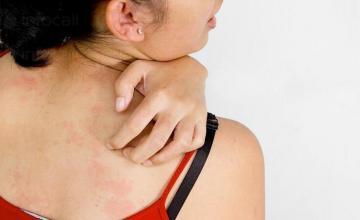 Лечение кожни болести във Варна-Център