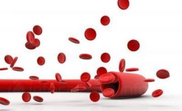 Лечение кръвни заболявания в Пловдив - Доктор Емилия Спасова