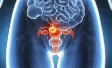 Лечение миома на матката в София-Лозенец - Медицински център Салвебис