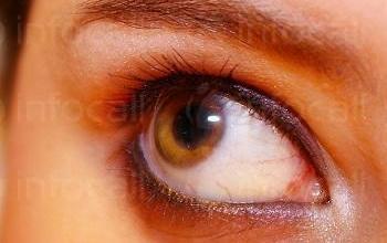 Лечение на глаукома в Пазарджик - Очен лекар Пазарджик