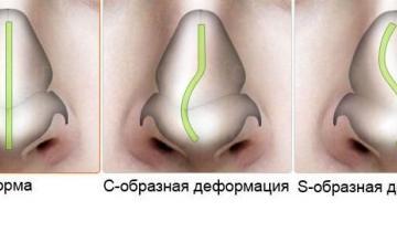 Лечение на изкривена носна преграда