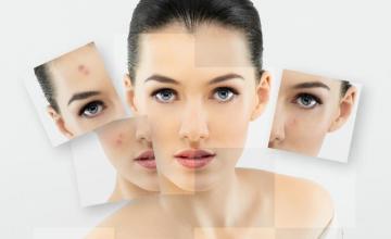 Лечение на кожни заболявания в Бургас - Доктор Елена Кондова