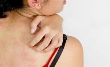 Лечение на кожни заболявания в София-Център