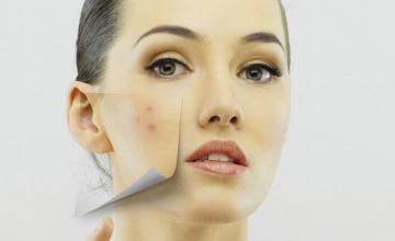 Лечение на кожни заболявания във Варна
