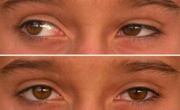 Лечение на очни болести в София-Младост 3 - Доктор Нелидия Танева