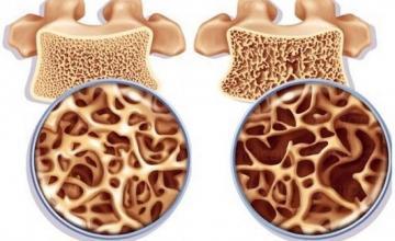 Лечение на остеопороза в София-Горна баня - Доктор Мария Кацарова
