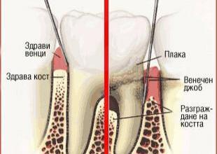 Лечение на пародонтит в Русе