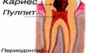 Лечение на периодонтит в Кърджали - Дентална клиника Минев