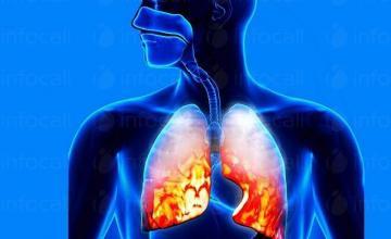 Лечение на пневмония в Русе - Доктор Миглена Ангелова Радева